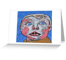 Hug One Greeting Card