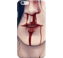 Nosebleed iPhone Case/Skin