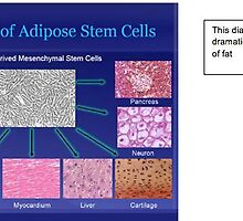 Capabilities of Adipose Stem Cells by stemcellorthope