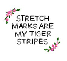 Stretch Marks are My Tiger Stripes Photographic Print