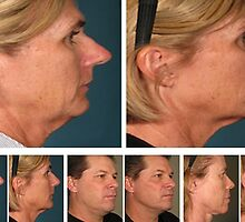 Ultherapy before and after by KathyWinston