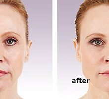 Juvederm before and after 2 by KathyWinston