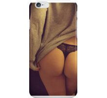 The Beagle iPhone Case/Skin