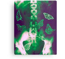 Butterflies in the stomach - x-ray  Metal Print