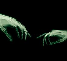 The Creation of Adam (Michelangelo) two hands under x-ray by PhotoStock-Isra