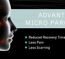 Parotid Tumor Surgery by ParotidMd