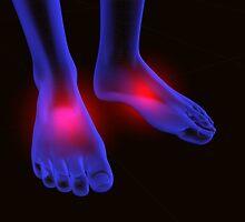 foot pain by carloscastilla