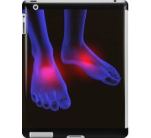 foot pain iPad Case/Skin