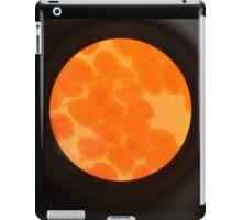 Adipose iPad Case/Skin
