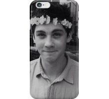 Logan Lerman iPhone Case/Skin
