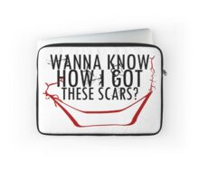 How'd I Get My Scars!? Laptop Sleeve