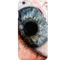 close iPhone Case/Skin
