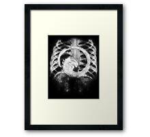 Chestburster x-ray Framed Print