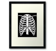 X-ray Chest Framed Print