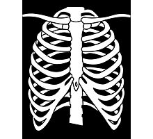 X-ray Chest Photographic Print
