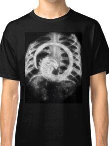 Alien Chest Burster X-Ray Classic T-Shirt