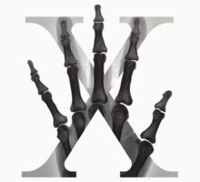 X for X-Ray Baby Tee