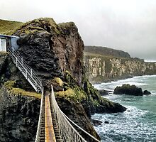 Carrick-a-Rede Rope Bridge by Ludwig Wagner