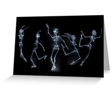 Dancing Skeletons X ray Greeting Card