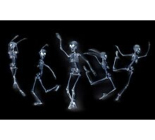 Dancing Skeletons X ray Photographic Print