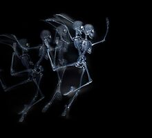 Dancing Skeletons X ray by ezumeimages