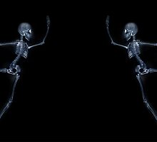 Dancing Skeleton X ray by ezumeimages