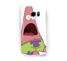 Patrick Samsung Galaxy Case/Skin
