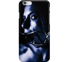 Dental Retractor iPhone Case/Skin