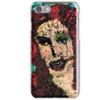 The Basorexic  iPhone Case/Skin