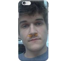 bo burnham iPhone Case/Skin