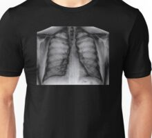 X-Ray Lungs chest graph Unisex T-Shirt