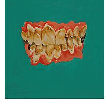 meth mouth Photographic Print