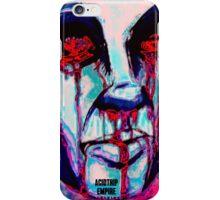 RedEye iPhone Case/Skin