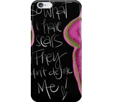 So What I Have Scars from Breast Cancer iPhone Case/Skin