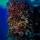 I SUFFER FROM PORITES! by NICK COBURN PHILLIPS