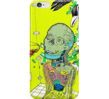 Minor Epiphany iPhone Case/Skin