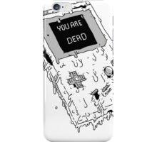 Deadboy (ORIGINAL NINTENDO GAMEBOY) iPhone Case/Skin