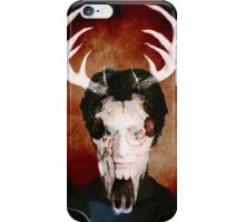Harry James Potter iPhone Case/Skin