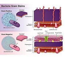 Gram Positive vs Gram Negative Bacteria Photographic Print