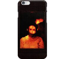 s-aint blister iPhone Case/Skin