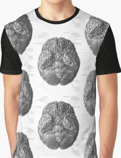 Historical surgical chart Graphic T-Shirt
