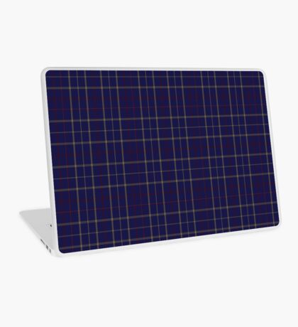 00470 Tattersall Blue Fashion Tartan  Laptop Skin