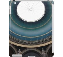 Over the Top iPad Case/Skin