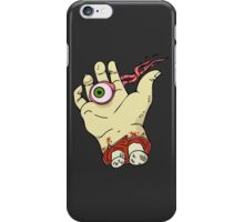 Chopped Hand; Lost Eyes iPhone Case/Skin