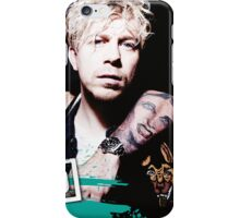 Busted iPhone Case/Skin