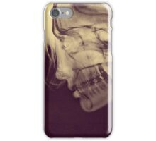 X-Ray Girl iPhone Case/Skin