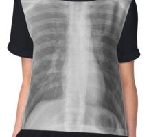Chest x-ray Chiffon Top