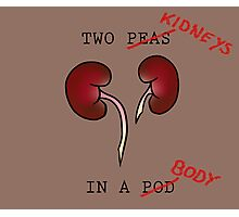 Two Kidneys in a Body Photographic Print