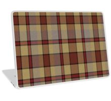 02673 Rockland County, New York Fashion Tartan  Laptop Skin