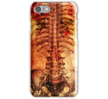 Ribs and roses iPhone Case/Skin